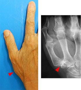006_thumb-finger-CM-arthropathy
