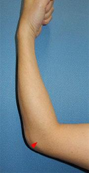 009_humerus-lateral-epicondylitis-tennis
