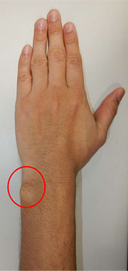 012_wrist-joint-scale-pain