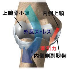 図3:内側型野球肘の発症メカニズム