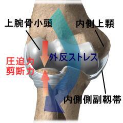 図5:離断性骨軟骨炎の発症メカニズム
