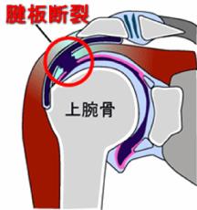 図2:腱板断裂