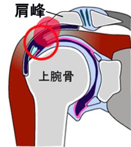 図5:肩峰の刺激