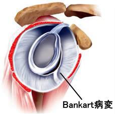 図1:Bankart病変