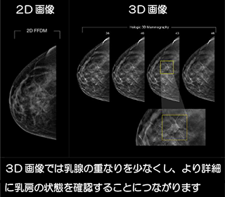mammography_3d-tomosynthesis_02