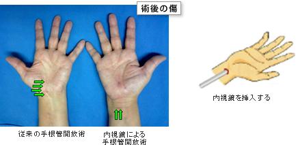 管 手 手術 根 症候群