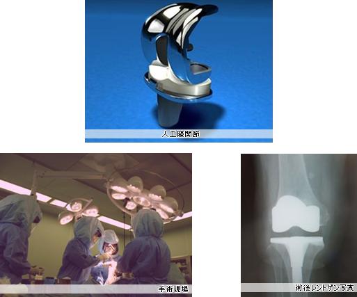 人工膝関節、手術現場、術後レントゲン写真